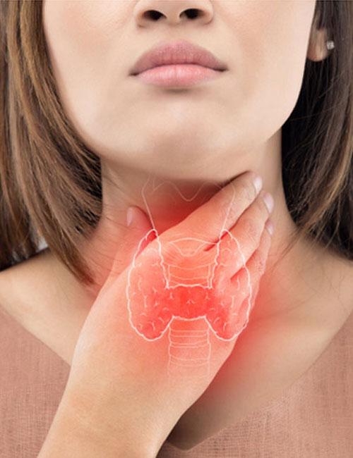 tiroid-hastaliklari